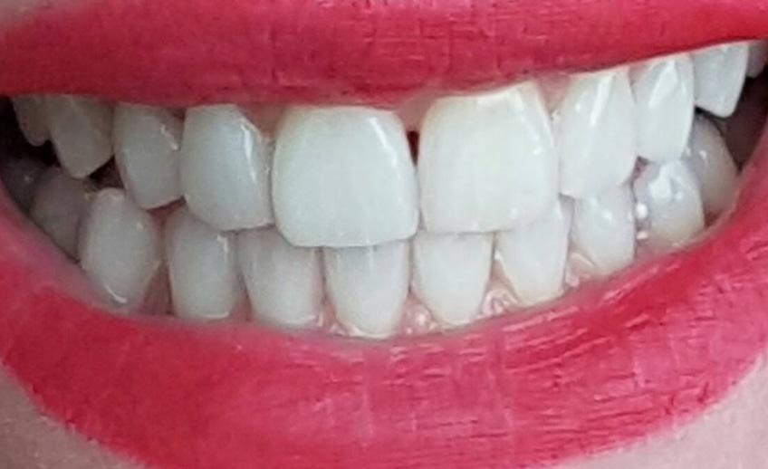 Un zambet perfect natural in 10 zile! In 4 pasi simpli! De ce apelam la un tratament cu fatete dentare?