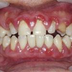 boala parodontala, doctor oana stoica - clinica medicum
