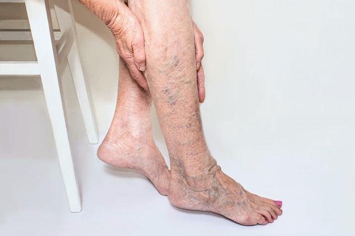 mâncărimea fundului picioarelor cu erupție cutanată insuficienţă venoasă periferică