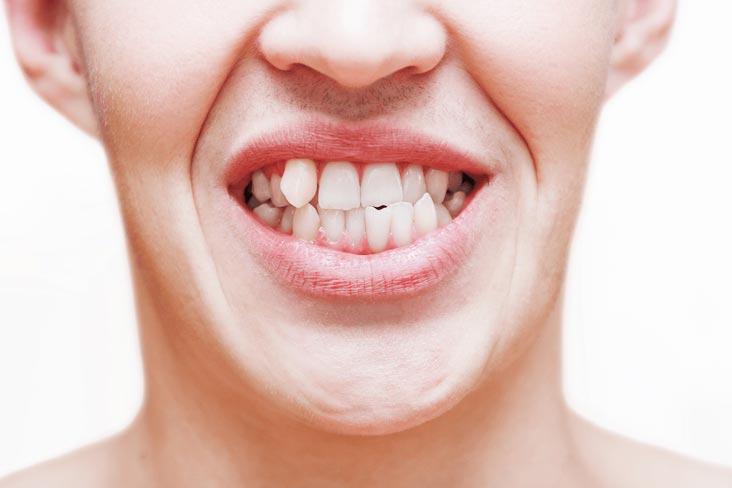 fatete dentare, stomatologie duosmiles clinica medicum